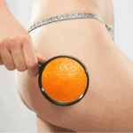 Cupping is an effective treatment for cellulite