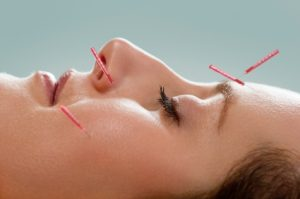 Facial acupuncture is pain free